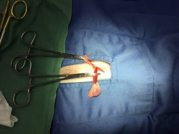 臍ヘルニア、皮下陰睾の画像
