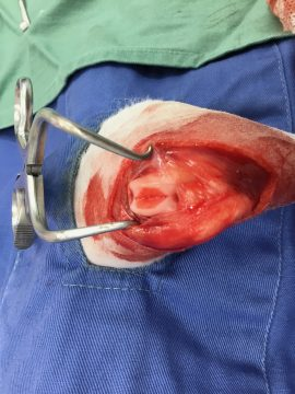 膝蓋骨内方脱臼の画像