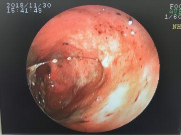 IBD(炎症性腸疾患)- タンパク喪失性腸症の画像
